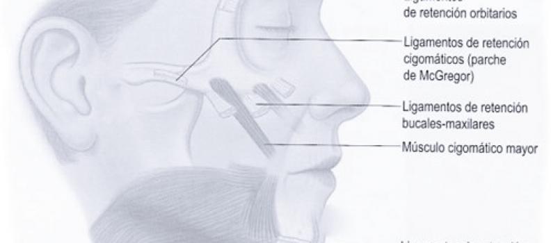 Cómo tratar el Surco Nasogeniano, esas arrugas de expresión que salen a ambos lados de la nariz y que van hacia la boca